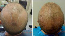 Bărbaţii pot să-şi ia adio de la chelie! S-a inventat transplantul cu păr de pe piept!
