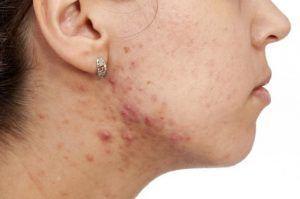 """Dermatolog: """"Acneea în cazul adulților a ajuns la nivel de epidemie"""". Ce factori o declanșează și cum se poate trata eficient"""