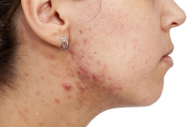 Cum să scapi definitiv de acnee și de cicatricele provocate de această afecțiune