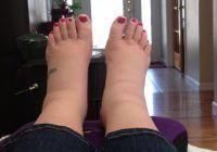 Ce pot ascunde picioarele umflate și reci. Şapte semnale de alarmă