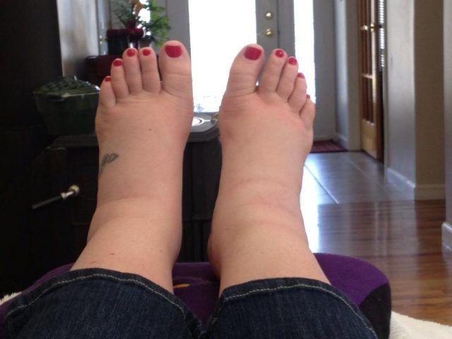 Umflarea picioarelor cu durere