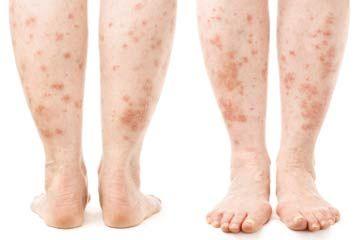 Ai o boală de piele? Află ce poți să pățești dacă o lași netratată