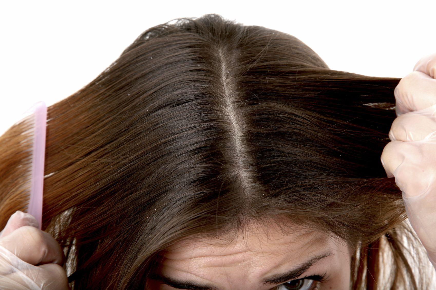 Ce boli pot ascunde mătreața și albirea prematură a părului?
