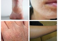 """De ce """"te strânge"""" pielea după ce te speli? Greșelile de îngrijire care duc la riduri și acnee"""