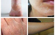 Bolile de tiroidă și de ficat se văd pe piele