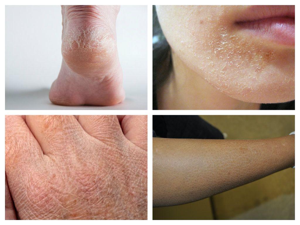 Ai pielea uscată? Iată șapte lucruri pe care le faci greșit