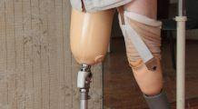 Aveți nevoie  de cârje sau  ghete ortopedice?  Sunt gratuite  pentru asigurați! Iată cum le obțineți