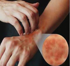 Urticaria, una dintre cele mai frecvente afecţiuni ale pielii. Toată viaţa, pacienţii trebuie să se ferească de un lucru