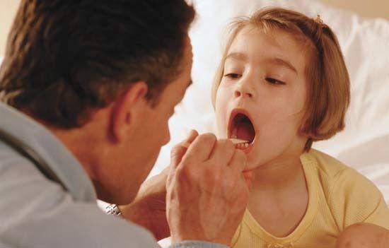 Te doare des în gât? Cât de indicat e să-ți scoți amigdalele?