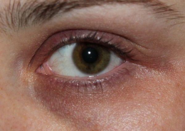 De ce apar cearcănele și pungile de sub ochi și cum să scapi de ele