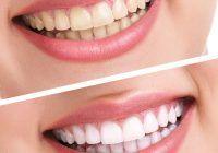 Produsul ieftin și ușor de găsit care face minuni pentru dinți, unghii și păr