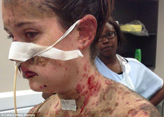 Niște medicamente prescrise de medic i-au provocat unei tinere o reacție alergică violentă
