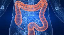 Primul semn al cancerului de colon este acesta. Oricine își poate face testul acasă