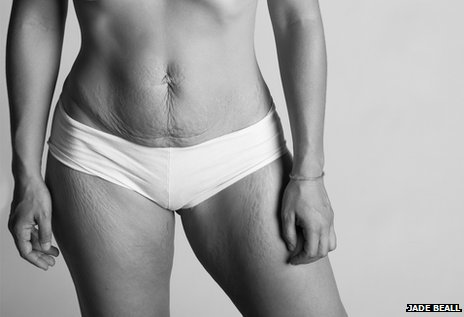 Cum se schimba corpul femeii dupa nastere