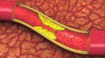 Durerile de picioare și amorțeala, semne că ai arterele înfundate. Simptome care anunță ca ești în mare pericol