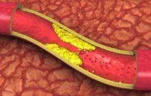 Alimentele care îți distrug organismul în doar nouă zile. Îngustează arterele și încetinesc metabolismul