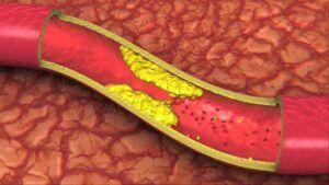 Alimentele care iți distrug organismul in doar noua zile. Ingusteaza arterele si incetinesc metabolismul