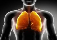 Opt alimente care detoxifiază plămânii și previn cancerul pulmonar