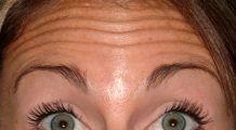 Metode ca sa scapi de ridurile de pe frunte