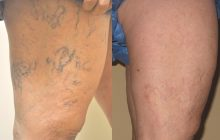 Varicele nu trebuie neglijate! Se pot agrava, riscați sângerare, tromboflebită, insuficienţă cronică venoasă. Cum le tratați