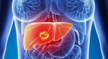 De ce apare cancerul la ficat? Aceștia unt factorii care duc la îmbolnăvire