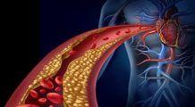 Alimente care scad nivelul grăsimilor din sânge