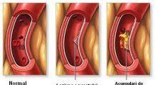 Remedii naturiste pentru curățarea arterelor de depozitele de grăsimi