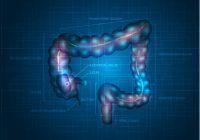 Patru super-alimente care protejează împotriva cancerului de colon