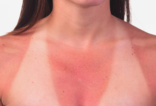 Soarele cauza principală pentru cancerul de piele, cancerele de ochi și cataractă