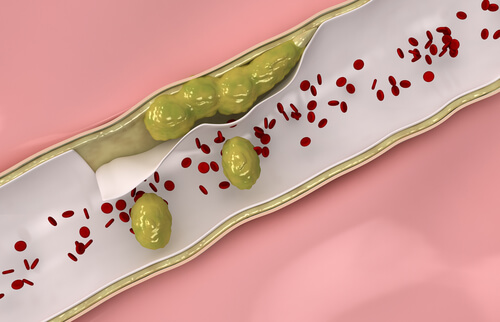 Remedii naturale pentru desfundarea arterelor