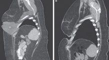 """O nouă terapie revoluționară """"programează"""" sistemul imunitar să găsească și să distrugă cancerul"""