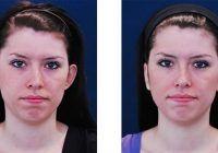 Ce presupune operația de remodelare a urechilor