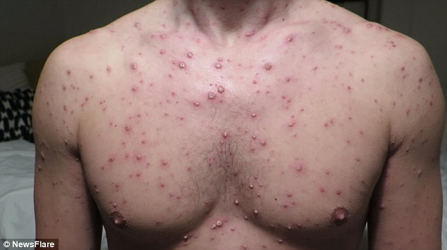 Ce se întâmplă când un adult face varicelă? Poate duce la pierderea definitivă a vederii