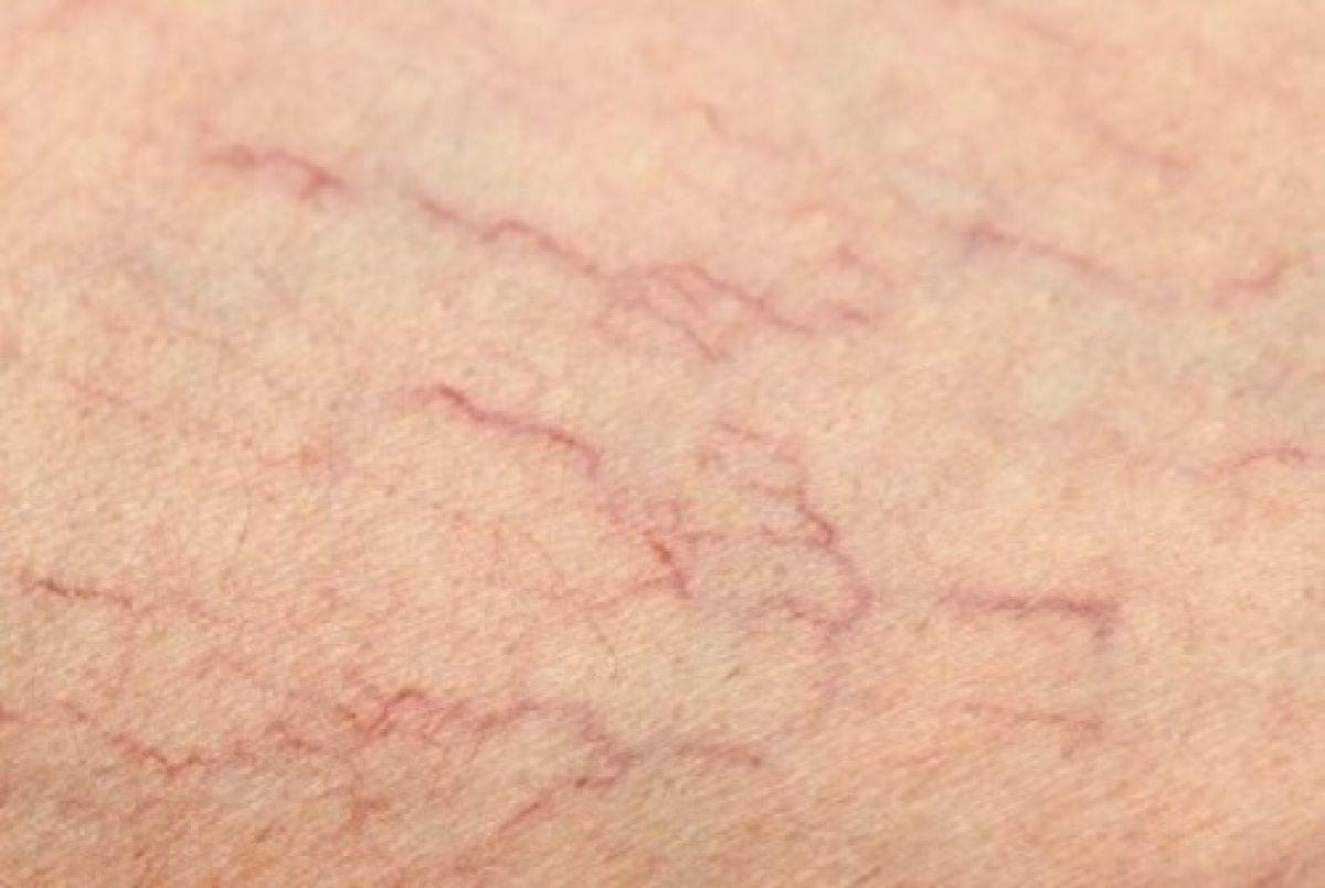 vinei varicoase pe scoloterapia cu tratarea picioarelor cum ajută sarea din varicoză