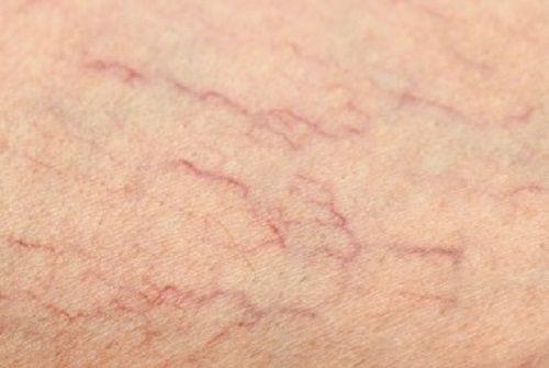 Remedii naturiste petru venele vizibile de pe picioare