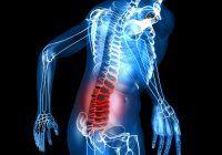 Hernia de disc. Cum previi această boală gravă care te poate aduce pe masa de operație