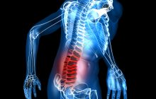 Cele mai mari greșeli pe care le fac românii când au dureri de cap și de spate. Explicațiile neurochirurgului