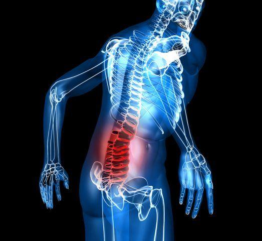 pierdere neașteptată în greutate și dureri de spate