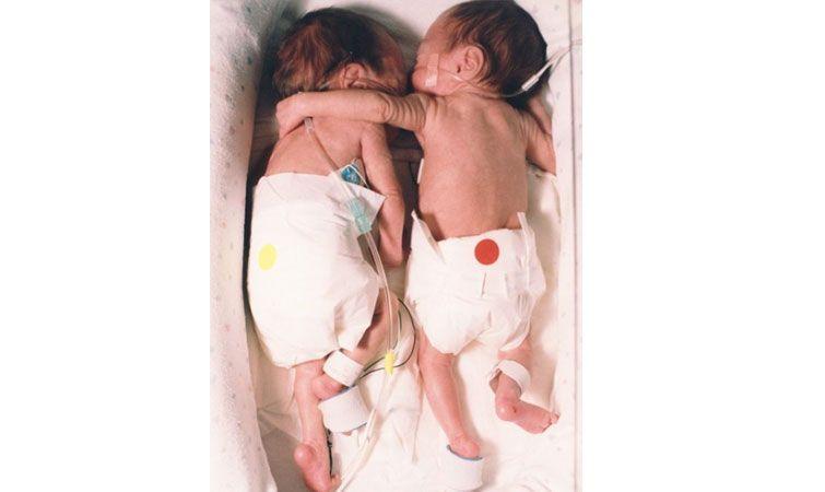 Miraculos. Cum i-a salvat viața un nou-născut surioarei sale gemene