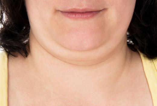Bărbia dublă înseamnă probleme cu tiroida?