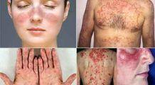 Cum ne poate îmbolnăvi propriul nostru sistem imunitar? SIMPTOMELE bolilor pe care le provoacă