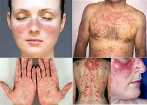 Boala cu o mie de fețe care atacă oasele, plămânii rinichii și sistemul nervos. Stresul și fumatul printre cauze