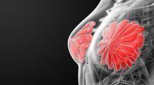 Cum verifici sănătatea sânilor cu acuratețe maximă