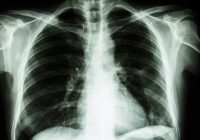 """Plămânii care """"respiră"""" în afara organismului! Dispozitivul responsabil dublează numărul de transplanturi"""