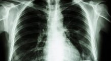 Cum se aude o boală de PLĂMÂNI extrem de GRAVĂ
