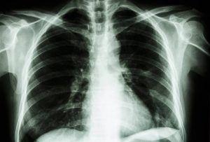 Cum se aude o boala de PLAMANI extrem de GRAVA
