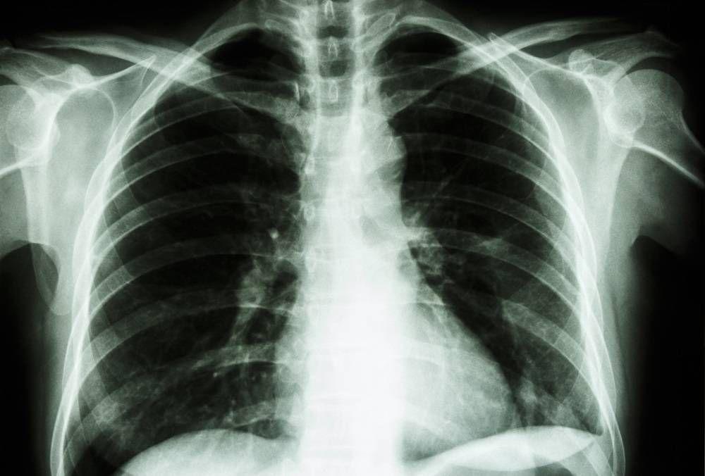 Boala de plămâni care face ravagii printre cei trecuți de 40 de ani. Jumătate dintre pacienți sunt nediagnosticați
