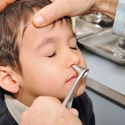 Operaţia de polipi la copii, pas cu pas