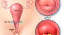 Rana pe colul uterin nu doare dar poate duce la cancer. Cum o depistezi și cum interpretezi rezultatul testului Babeș-Papanicolau