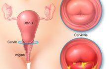 Rana pe colul uterin nu doare dar poate duce la cancer